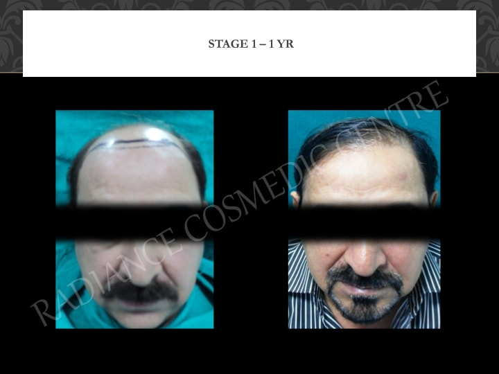 Hair Transplant Results in Delhi NCR