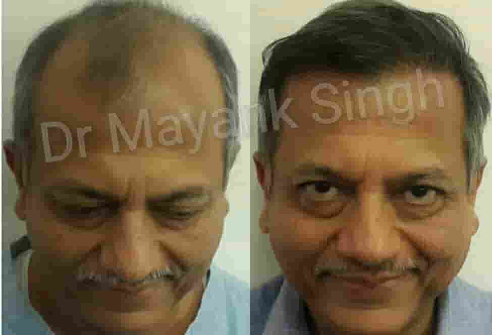 Hair Transplant Surgery Before and After in Delhi NCR