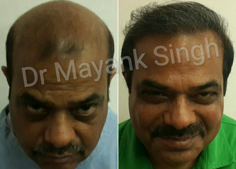 Hair Transplant Surgery Before and After in Delhi NCR4