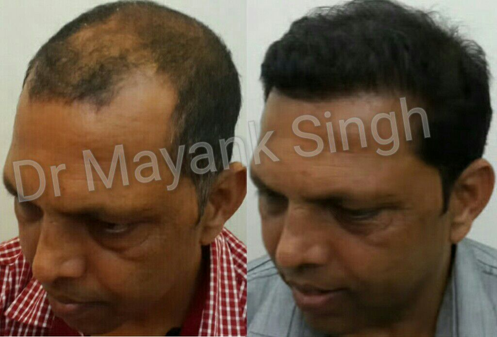 Hair Transplant Surgery Before and After in Delhi NCR7