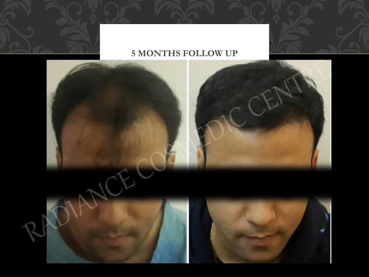 Hair Transplant Results in Delhi NCR 17