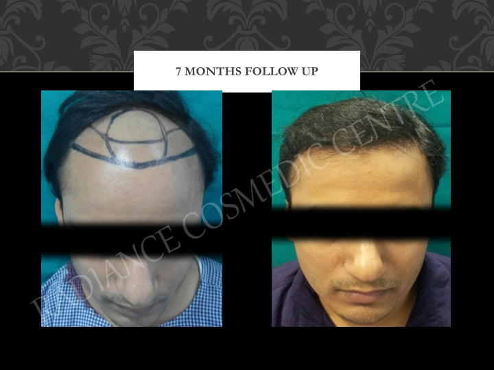 Hair Transplant Results in Delhi NCR 16