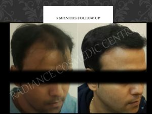 Hair Transplant before and after Results in Delhi 27