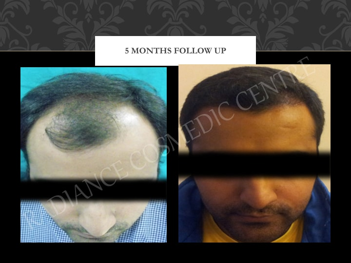 Hair Transplant Results in Delhi NCR 14