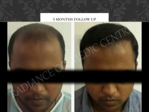 Hair Transplant before and after Results in Delhi 43