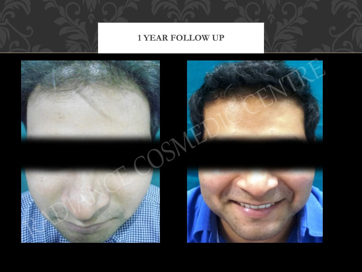 Hair Transplant before and after Results in Delhi 56
