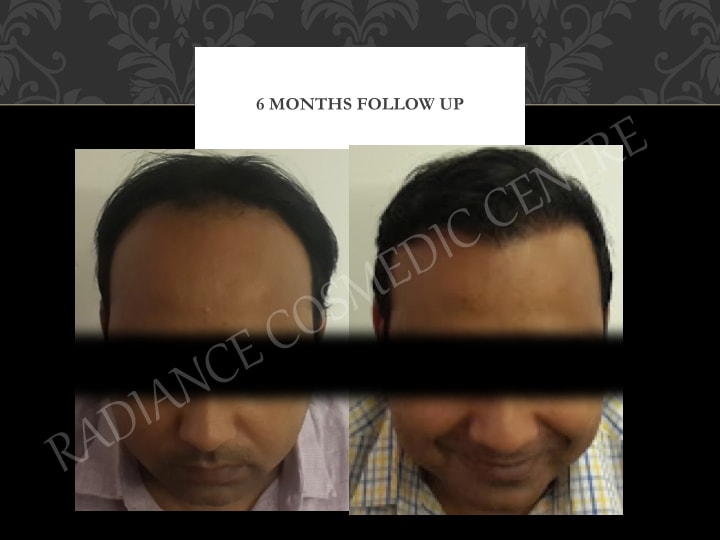 Hair Transplant Results in Delhi NCR 8