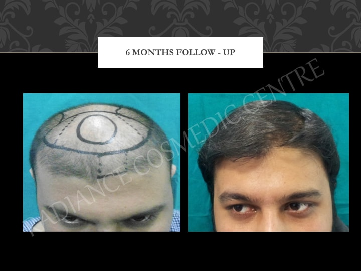 Hair Transplant Results in Delhi NCR 7