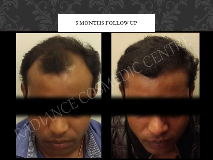 Hair Transplant Results in Delhi NCR 6
