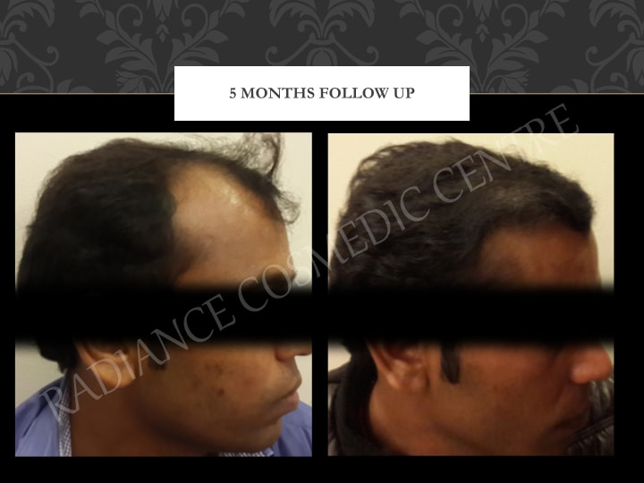 Hair Transplant Results in Delhi NCR 5