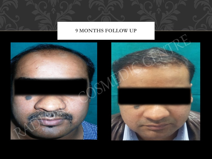 Hair Transplant Results in Delhi NCR 4