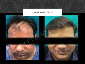 Hair Transplant before and after West Delhi