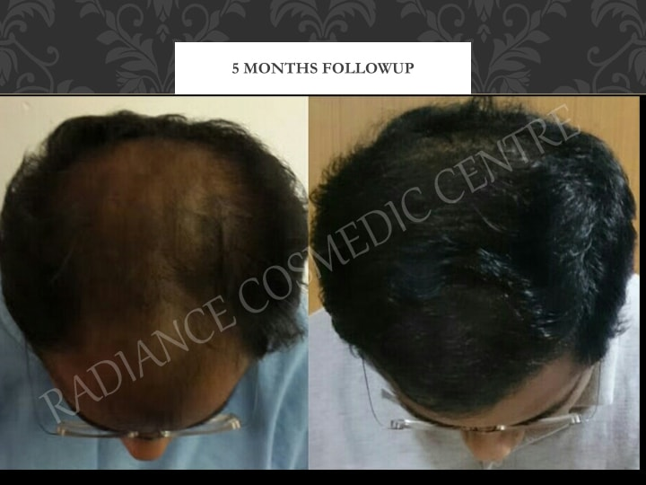 Hair Transplant Results in Delhi NCR 2