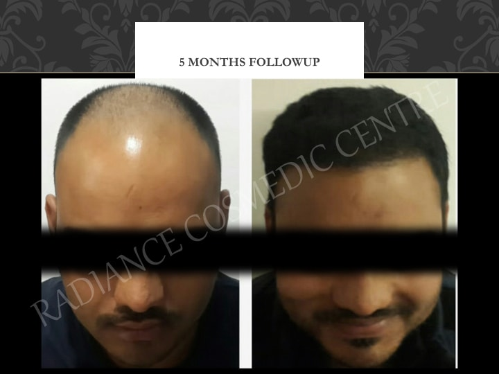 Hair transplant with latest technology Delhi
