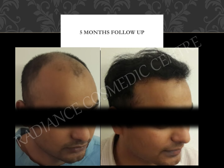 Non surgical hair transplant in delhi
