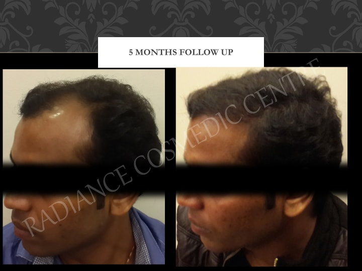 Radiance Cosmedic Centre Hair Transplant Surgery Before and after