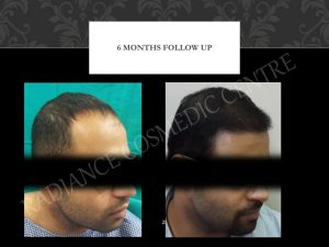 best hair transplant results Delhi