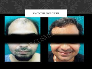 cost for best hair transplant in delhi