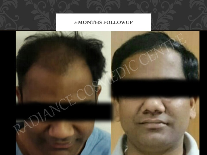 precautions from hair transplant