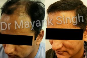 Hair Transplant Before & After in Delhi 5
