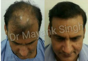 Hair Transplant Results in Delhi NCR 25