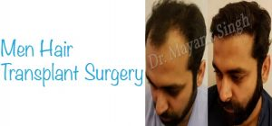 Hair transplant surgery For Men in Delhi