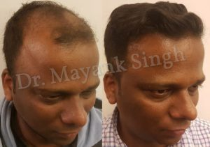 hair transplant results latest