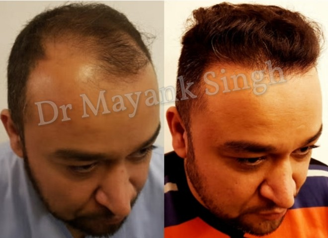 Hair Transplantation Results in Delhi