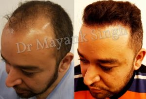 hair transplant results before after (2)