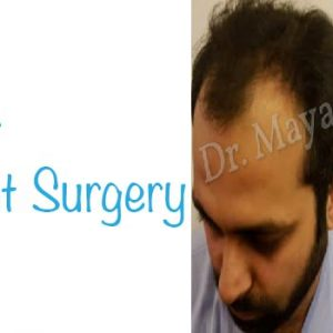 Hair Transplant Befor and after Results in Delhi
