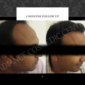Hair Transplant before and after Client from Delhi