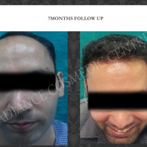 FUT hair transplant surgery in delhi