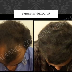 Hair Transplant before and after Client