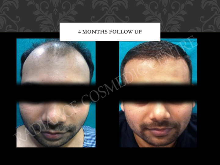 Hair Transplant before and after Results in Delhi 30