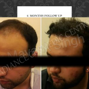 Hair Transplant before and after by dr mayank Singh