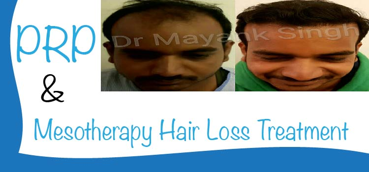 PRP and Mesotherapy Hair Loss Treatment