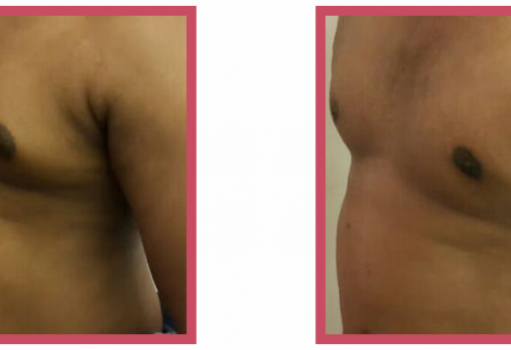 Male Breast Reduction Surgery 1