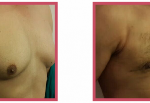 Male Breast Reduction Surgery 3