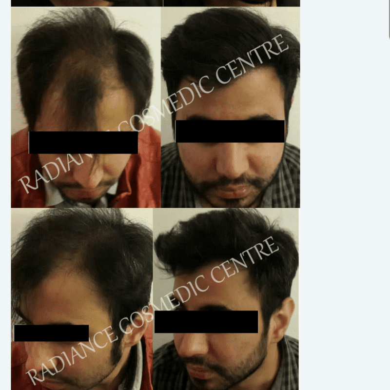 Hair Transplant before and after (1)