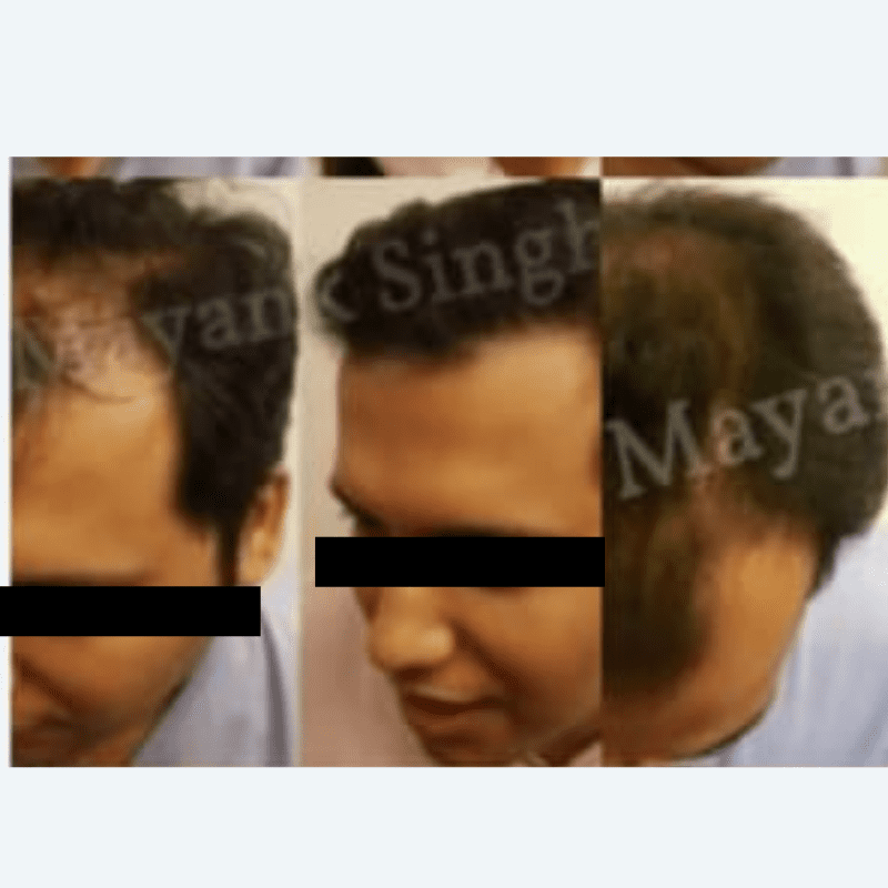 FUE and FUT Hair Transplant before and after results