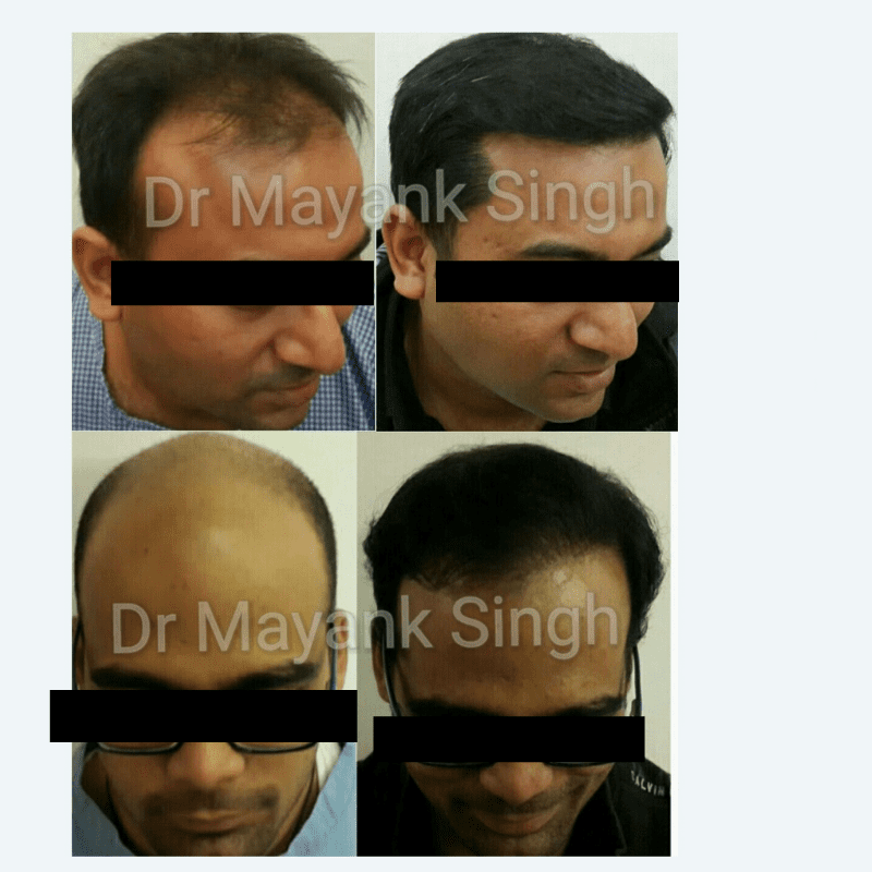 FUE and FUT Hair Transplant before and after results in Delhi