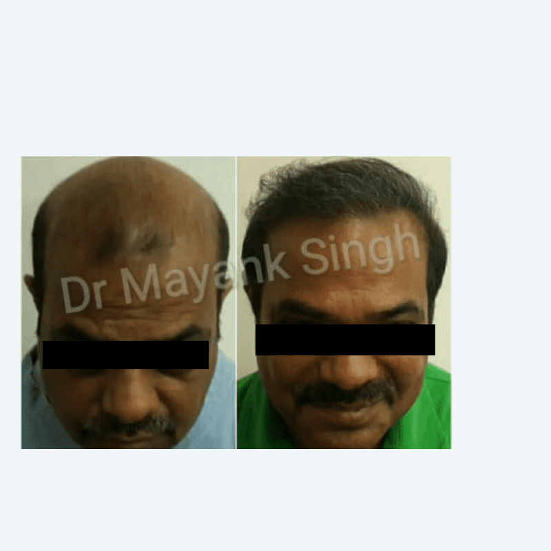 FUE and FUT Hair Transplant clinic in Delhi