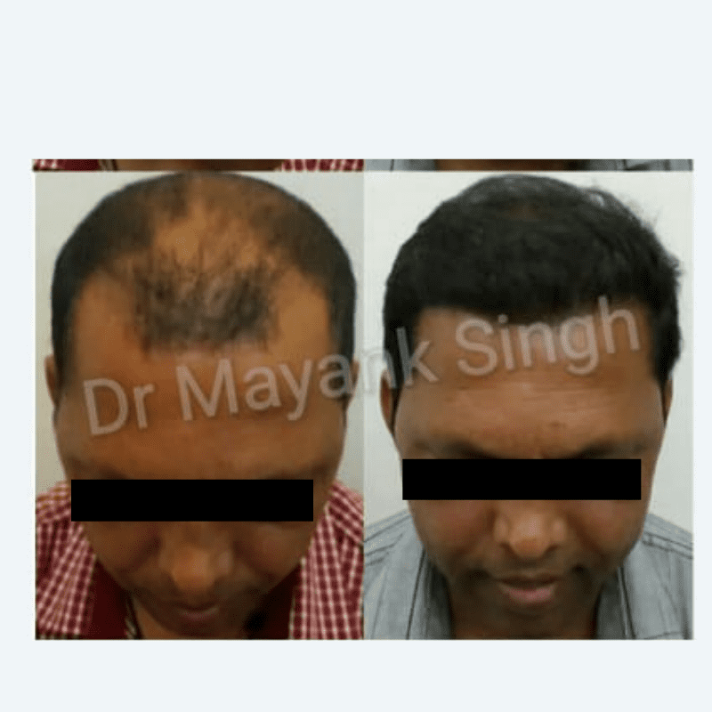 Hair Transplant before and after results