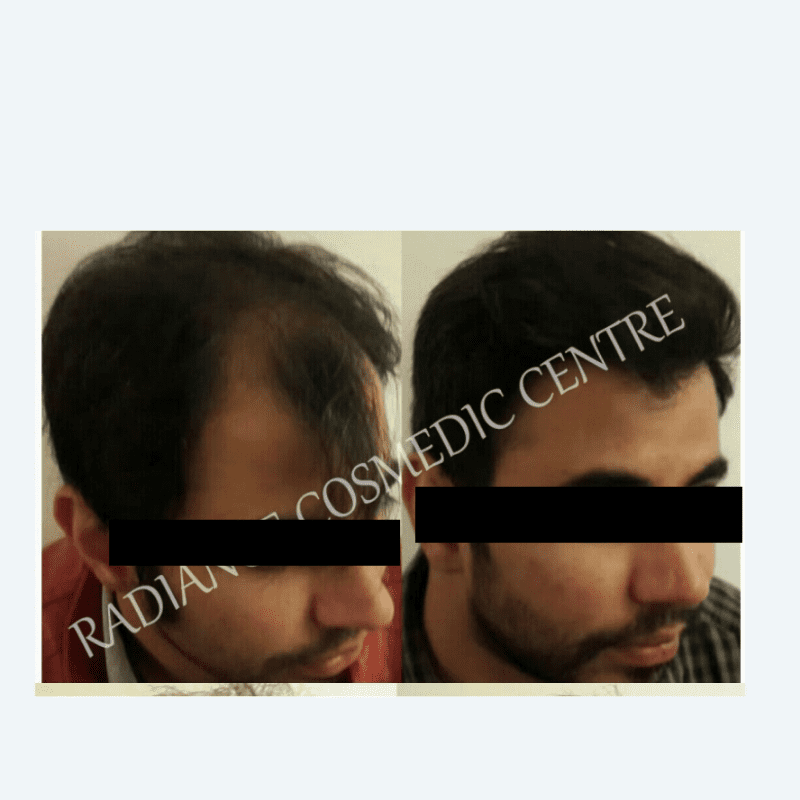 Hair Transplant before and after in south Delhi