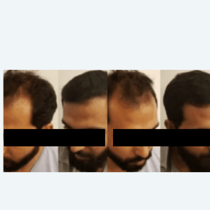 FUE and FUT Hair Transplant before and after results in India