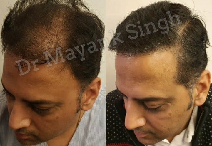 FUE and FUT Hair Transplant before and after in Delhi