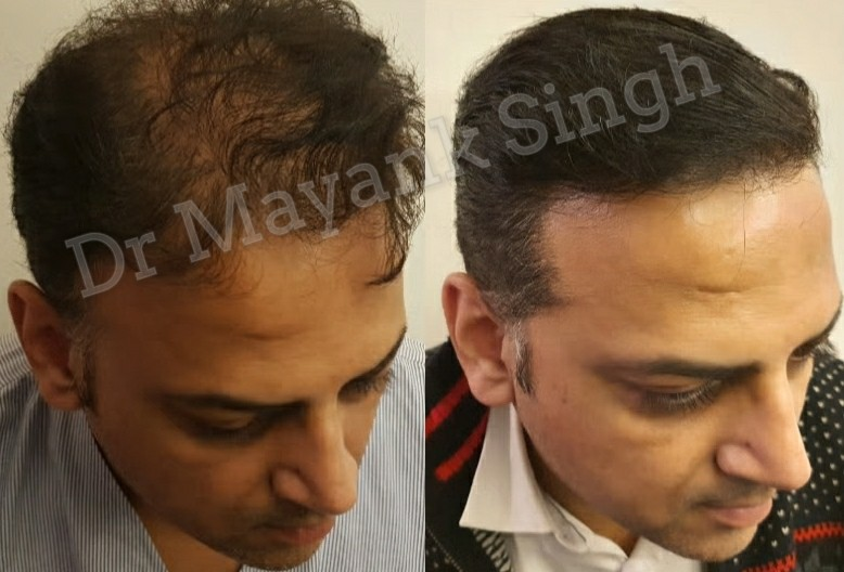 Hair Transplant before and after in Delhi